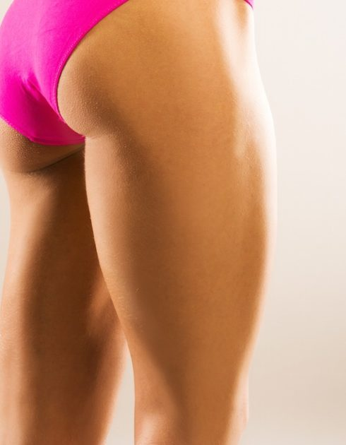 What is a thigh lift? | Houston, Texas